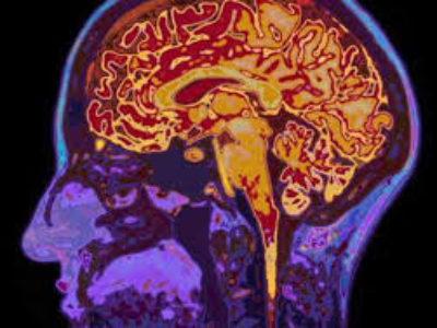 Düşük Yoğunluktaki Ultrason Beynin Karar Verme Sürecini Etkileyebilir.