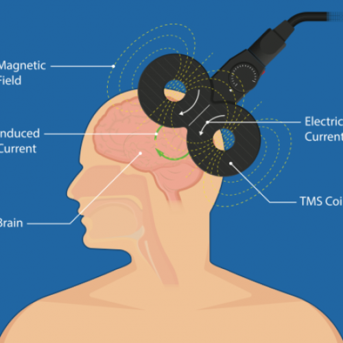 İnme Yaşayan Hastaların Beyin Bağlantılarını Yeniden Kurmak Depresyonu Hafifletebilir